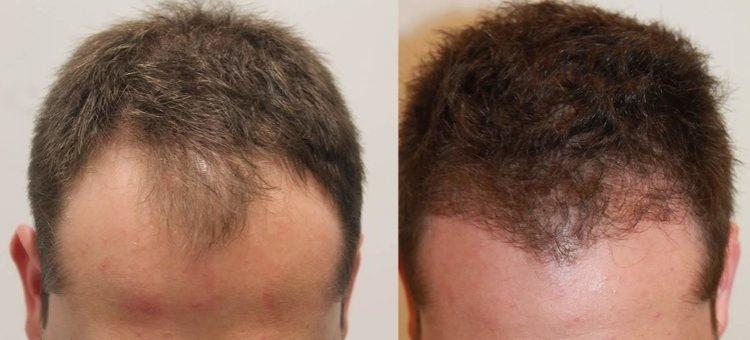 العلاج الطبي وزراعة الشعر