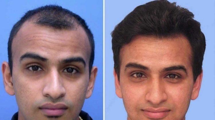 علاجات استعادة الشعر
