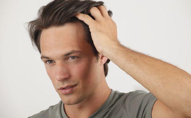 نتيجة لزراعة الشعر