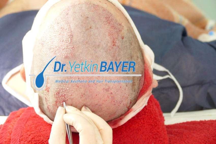 مريض يخضع لجراحة زرع الشعر في مركز يتكين باير