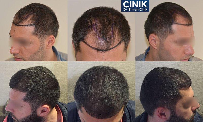 قبل وبعد عملية زرع الشعر