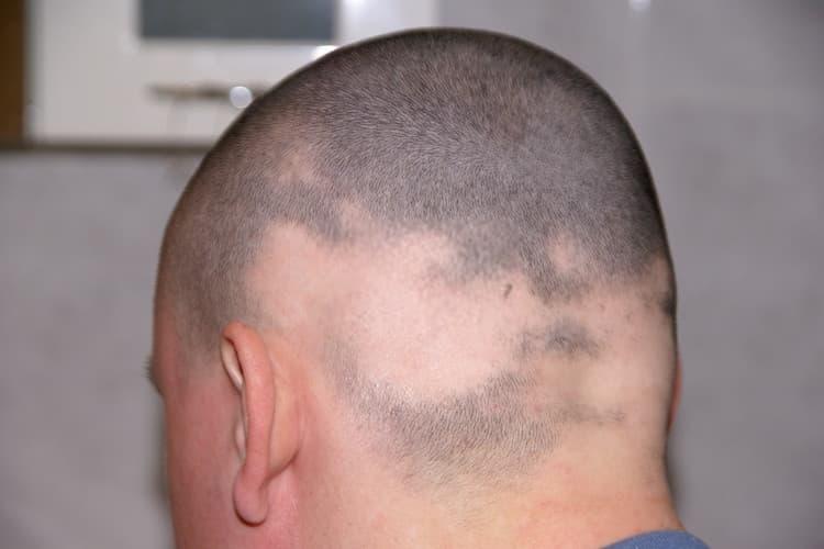 مريض مصاب بمرض الثعلبة أحد مسببات تساقط الشعر المرضي