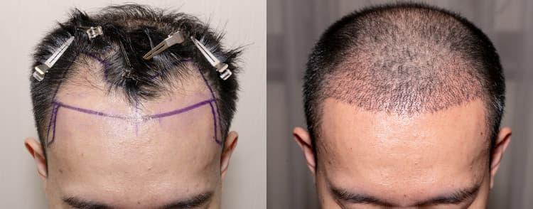 بعد زراعة الشعر بالاقتطاف